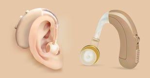 Vectorgehoorapparaat achter het oor Correcte versterker voor patiënten met verlies van het gehoor Behandeling en prosthetics binn Stock Afbeelding