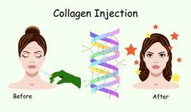 Vectorillustratie met het proces van de collageeninjectie op de witte achtergrond Stock Foto