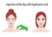 Vectorillustratie met Hyaluronic Zuur voor lippeninjecties op de witte achtergrond Royalty-vrije Stock Afbeelding