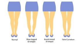 Vectorillustratie met verschillende vormen van vrouwenbenen vector illustratie