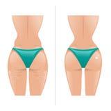 Vectorillustratie van cellulite en gezonde huid Stock Afbeeldingen