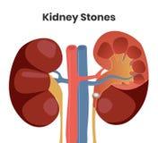 Vectorillustratie van de nierstenen Obstakel van urether met de steen Royalty-vrije Stock Foto