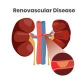 Vectorillustratie van de renovascular ziekte Illustratie van de bloedprop in de slagader van de nieren Royalty-vrije Stock Afbeelding