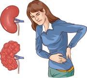 vectorillustratie van een Chronische nierziekte Stock Foto's