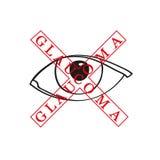 Vectorillustratie van glaucoom Stock Afbeeldingen
