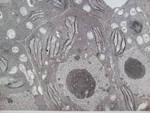 Vegetal cell. Electron microscopy of a vegetal cell showing chloroplast, nucleus, nucleole and cell walls stock images
