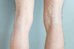 Veias varicosas e da aranha nos pés Imagens de Stock