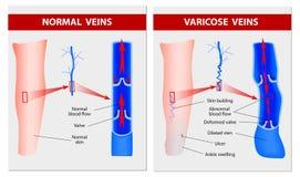 Veias varicosas. Ilustração médica Fotografia de Stock