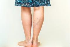 Veias varicosas nos pés da mulher fotos de stock royalty free