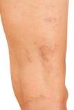 Veias varicosas nos pés Imagem de Stock