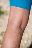 Veines variqueuses Images libres de droits