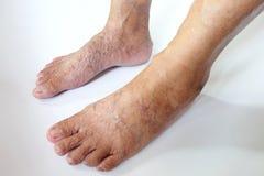Veines variqueuses dans les pieds et les jambes Image libre de droits