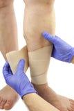 Veines variqueuses et bandage Image stock