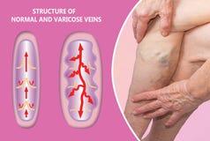 Veines variqueuses sur jambes supérieures femelles La structure de la normale et des veines variqueuses photos stock