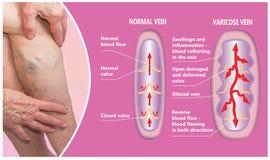 Veines variqueuses sur jambes supérieures femelles La structure de la normale et des veines variqueuses photo libre de droits