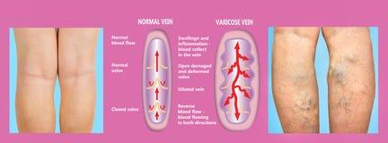 Veines variqueuses sur jambes supérieures femelles La structure de la normale et des veines variqueuses photos libres de droits