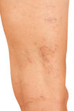 Veines variqueuses sur les jambes Image stock