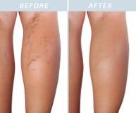 Veines variqueuses sur les jambes après et avant traitement image libre de droits