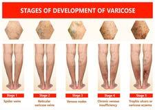 Veines variqueuses sur une jambe supérieure femelle photographie stock