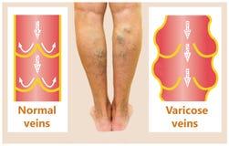 Veines variqueuses sur une jambe supérieure femelle Photographie stock libre de droits