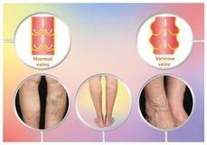 Veines variqueuses sur une jambe supérieure femelle illustration de vecteur