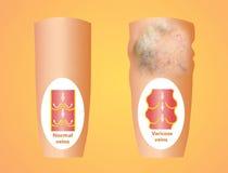 Veines variqueuses sur une jambe supérieure femelle illustration stock