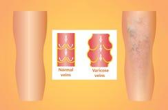Veines variqueuses sur une jambe supérieure femelle Photos libres de droits