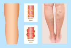 Veines variqueuses sur une jambe supérieure femelle Image stock