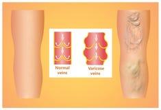 Veines variqueuses sur une jambe supérieure femelle illustration libre de droits