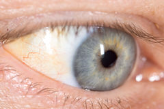 Veins in the eyes of men. Stock Photography