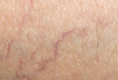 Veins on the skin. close. A photo Royalty Free Stock Photos