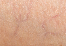 Veins on the skin. close. Photo taken by professional camera and lens Royalty Free Stock Images
