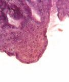 Vejiga de rozadura, cruz microscópica - seccione _C4270 imagenes de archivo