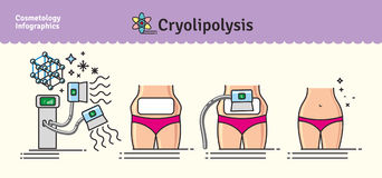 Vektor illustrerad uppsättning med cosmetologyCryolipolysis behandling stock illustrationer
