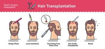 Vektor illustrerad uppsättning med hårtransplantatkirurgi stock illustrationer