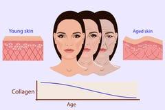 Vektorframsida och två typer av hud - som är åldrig och som är ung för medicinska och cosmetological illustrationer arkivbilder