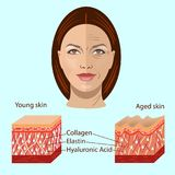 Vektorframsida och två typer av hud - som är åldrig och som är ung för medicinska och cosmetological illustrationer Royaltyfri Foto