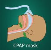 Vektorillustration av andning med CPAP-maskeringen Arkivfoton