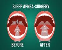 Vektorillustration av kirurgi för hindrande sömnapnea Arkivfoton
