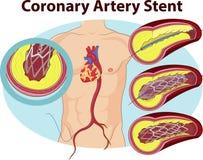 Vektorillustration av spermafertilizationVectorillustrationen av stenten för koronar artär stock illustrationer