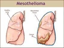 Vektorillustration einer Pleural Mesothelioms stock abbildung