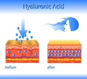 Vektorillustration med det kosmetiska utfyllnadsgodset eller Hyaluronic syra på ljus bakgrund royaltyfri foto