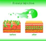Vektorillustration med det kosmetiska utfyllnadsgodset eller Hyaluronic syra på ljus bakgrund royaltyfria foton