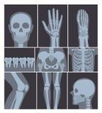Vektorillustrationen ställde in av röntgenstråleskott Hand, huvud, knä och andra delar av människokroppen på X strålskott på vit vektor illustrationer