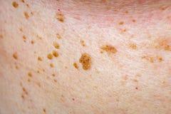 Vele nevus op menselijke huid stock fotografie