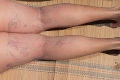 Venas varicosas y de la araña dolorosas Fotos de archivo