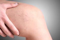 Vene varicose in donne Immagini Stock Libere da Diritti