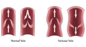 Vene varicose e vene normali Fotografia Stock Libera da Diritti