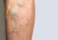 Vene varicose su una gamba Fotografia Stock