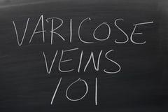 Vene varicose 101 su una lavagna Fotografie Stock Libere da Diritti